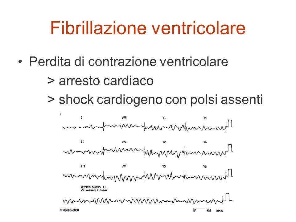 Fibrillazione ventricolare Perdita di contrazione ventricolare > arresto cardiaco > shock cardiogeno con polsi assenti