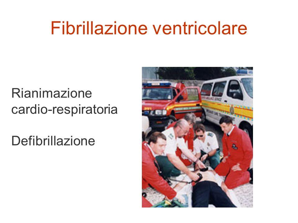 Fibrillazione ventricolare Rianimazione cardio-respiratoria Defibrillazione