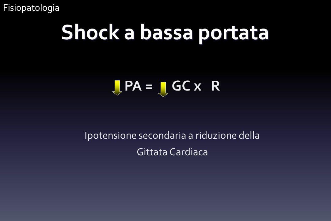 Shock a bassa portata PA = GC x R Ipotensione secondaria a riduzione della Gittata Cardiaca Fisiopatologia