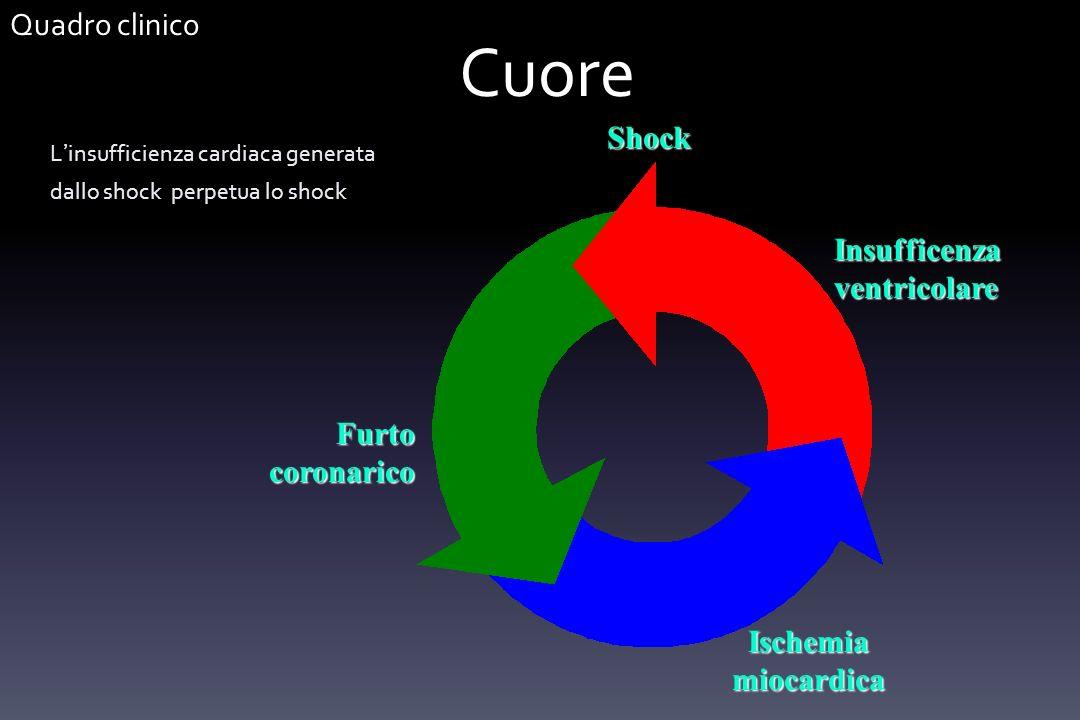 Cuore L insufficienza cardiaca generata dallo shock perpetua lo shock Shock Furto coronarico Ischemia miocardica Insufficenza ventricolare Quadro clin