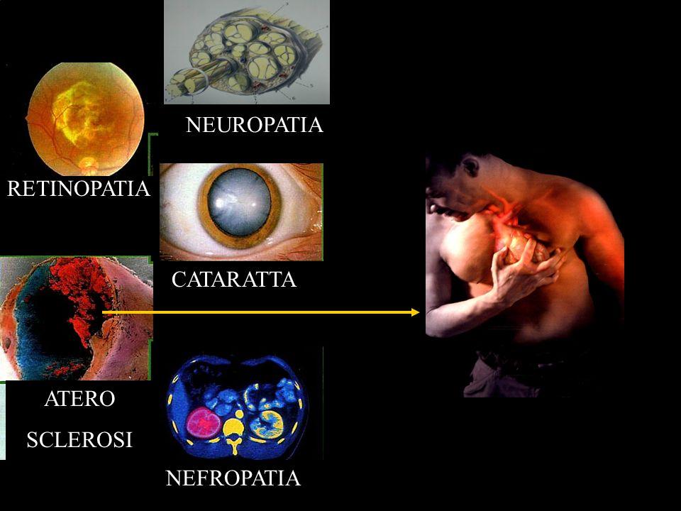 Nefropatia Diabetica Estesi depositi di materiale ialino nella parete dei piccoli vasi.