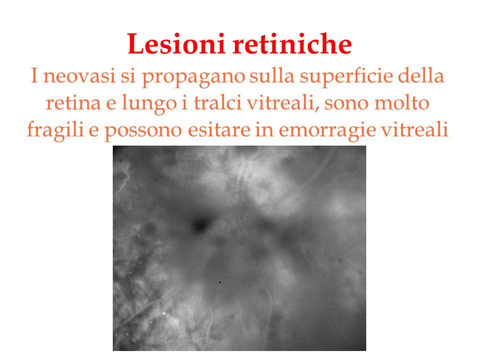 Lesioni retiniche I neovasi si propagano sulla superficie della retina e lungo i tralci vitreali, sono molto fragili e possono esitare in emorragie vi