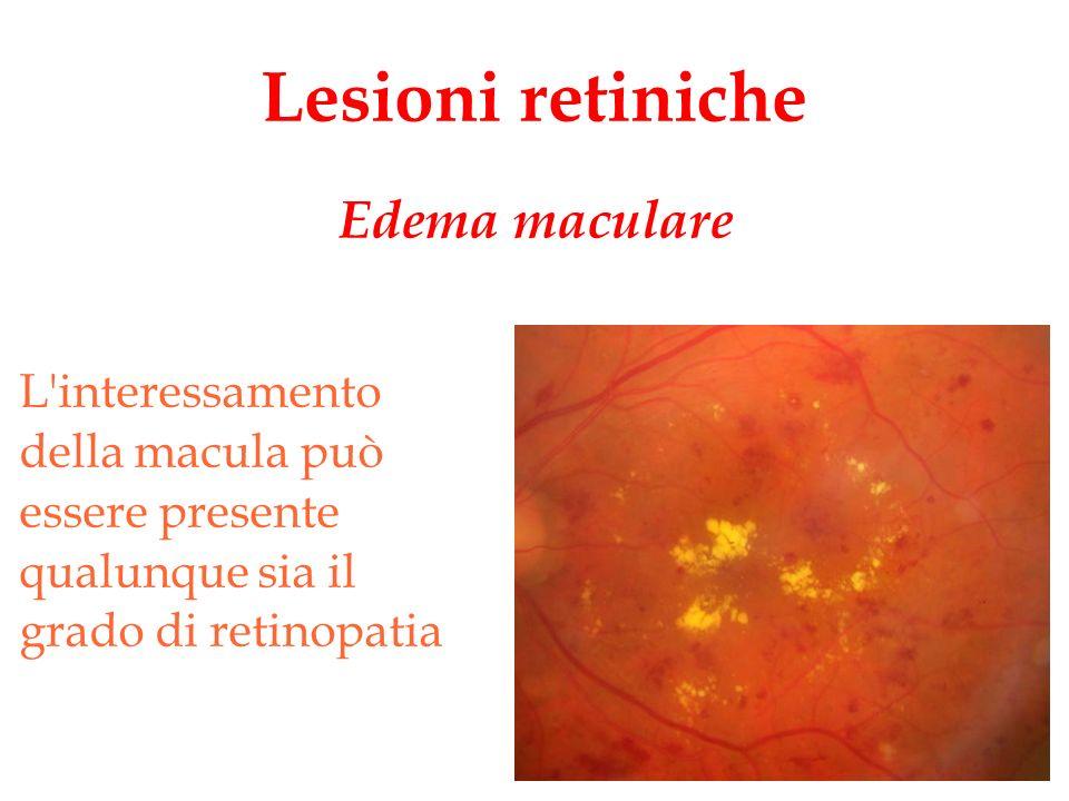 Lesioni retiniche L'interessamento della macula può essere presente qualunque sia il grado di retinopatia Edema maculare