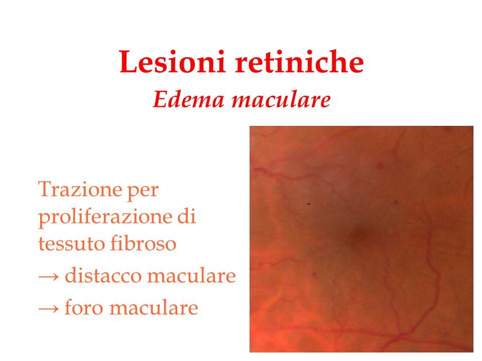 Lesioni retiniche Trazione per proliferazione di tessuto fibroso distacco maculare foro maculare Edema maculare