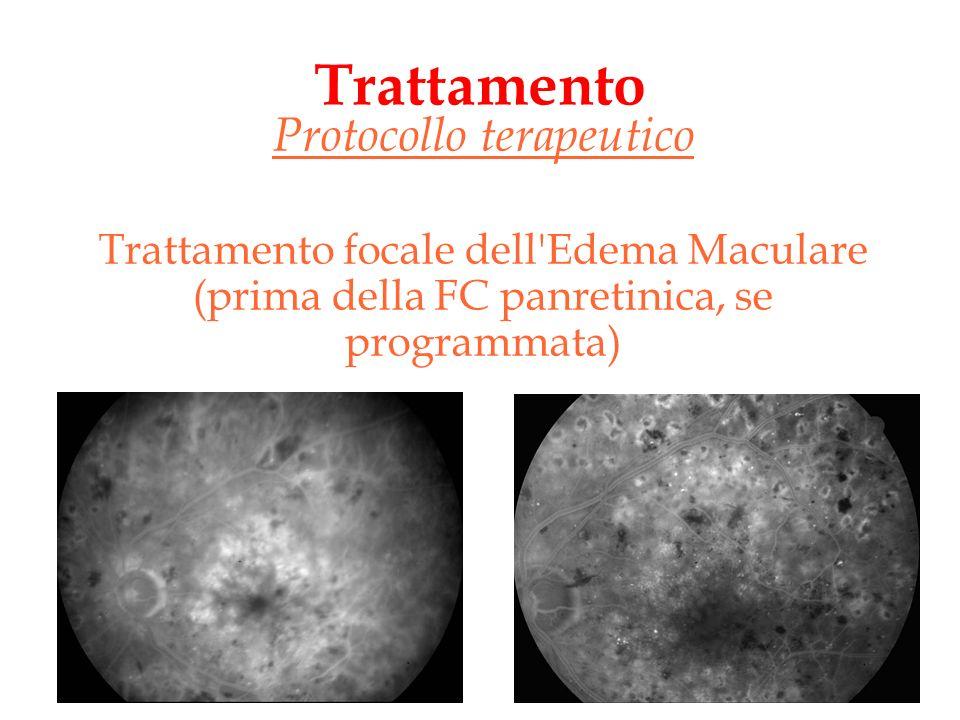 Trattamento Protocollo terapeutico Trattamento focale dell'Edema Maculare (prima della FC panretinica, se programmata)