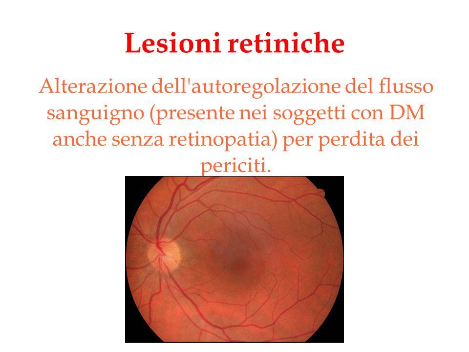 Lesioni retiniche Alterazione dell'autoregolazione del flusso sanguigno (presente nei soggetti con DM anche senza retinopatia) per perdita dei pericit