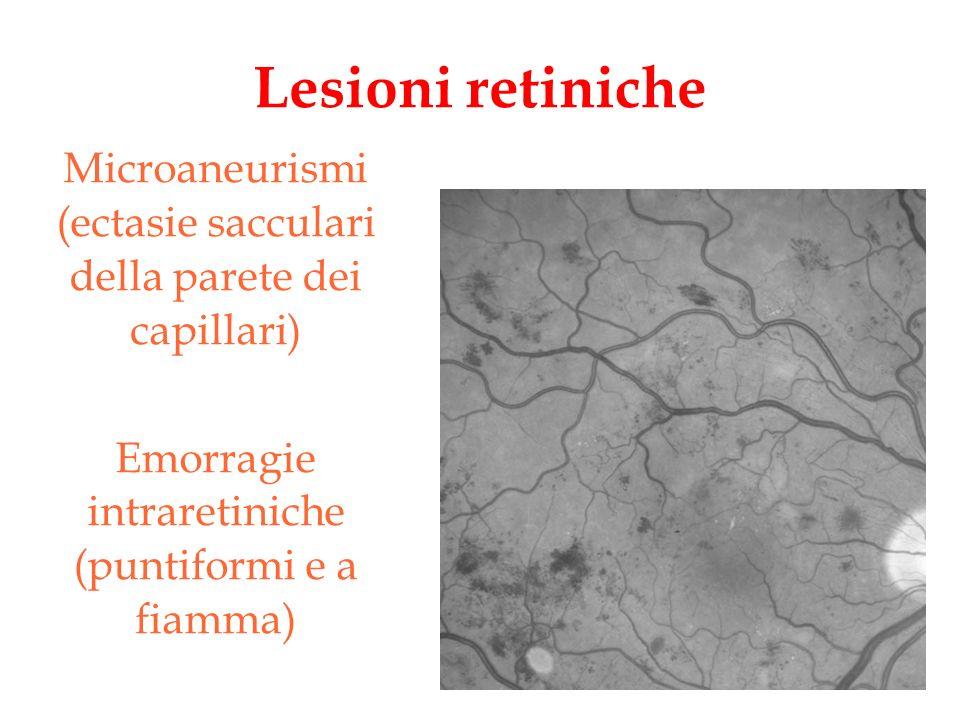 Lesioni retiniche Microaneurismi (ectasie sacculari della parete dei capillari) Emorragie intraretiniche (puntiformi e a fiamma)