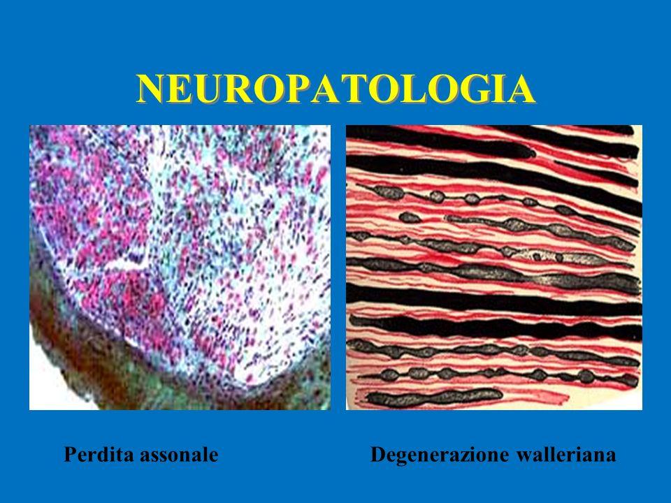 NEUROPATOLOGIA Perdita assonale Degenerazione walleriana