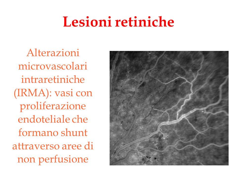 Lesioni retiniche Alterazioni microvascolari intraretiniche (IRMA): vasi con proliferazione endoteliale che formano shunt attraverso aree di non perfu