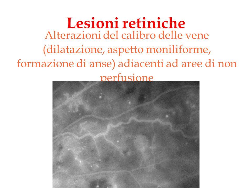 Lesioni retiniche Retinopatia diabetica proliferante : proliferazione di tubuli di cellule endoteliali intorno al disco ottico o ai margini delle aree di non perfusione.