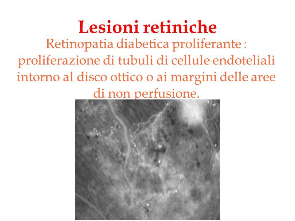 Lesioni retiniche Retinopatia diabetica proliferante : proliferazione di tubuli di cellule endoteliali intorno al disco ottico o ai margini delle aree