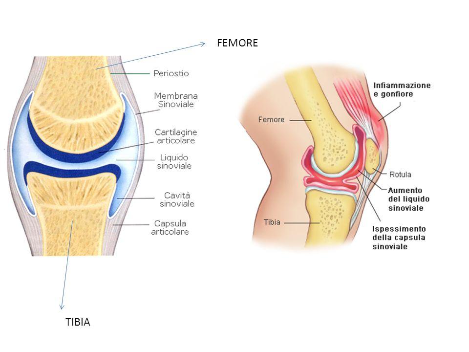 TIBIA FEMORE