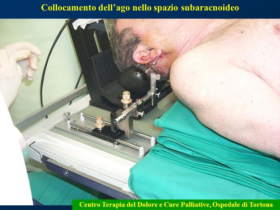 15 Collocamento dellago nello spazio subaracnoideo Centro Terapia del Dolore e Cure Palliative, Ospedale di Tortona