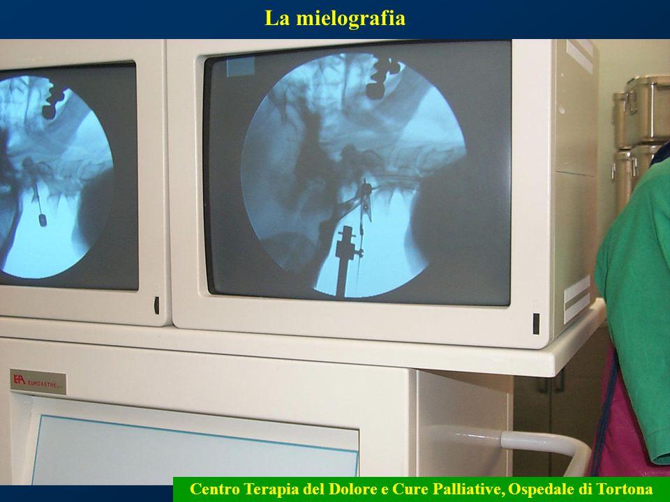 16 La mielografia Centro Terapia del Dolore e Cure Palliative, Ospedale di Tortona