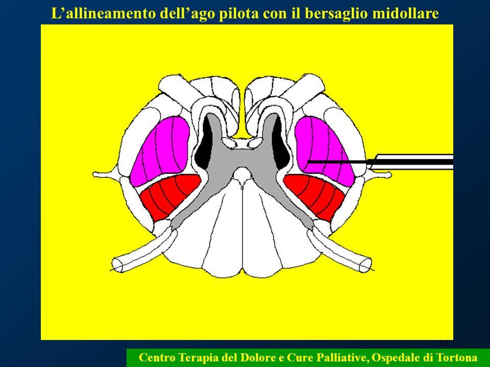 18 Lallineamento dellago pilota con il bersaglio midollare Centro Terapia del Dolore e Cure Palliative, Ospedale di Tortona