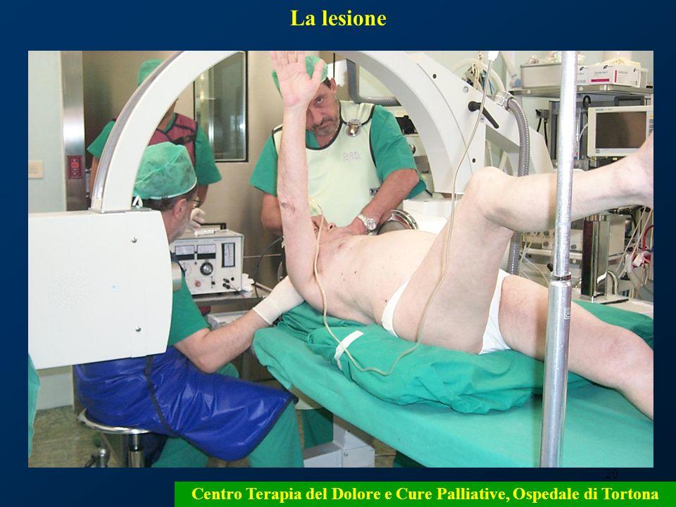 20 Centro Terapia del Dolore e Cure Palliative, Ospedale di Tortona La lesione