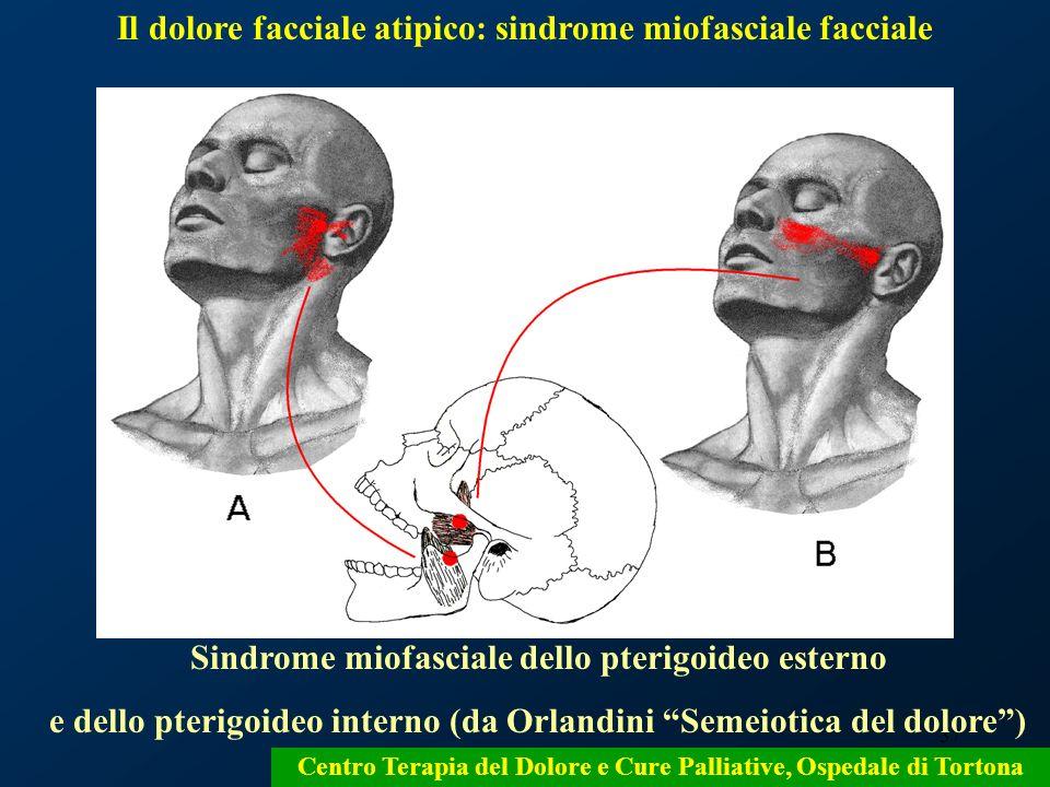 37 Sindrome miofasciale dello pterigoideo esterno e dello pterigoideo interno (da Orlandini Semeiotica del dolore) Centro Terapia del Dolore e Cure Pa