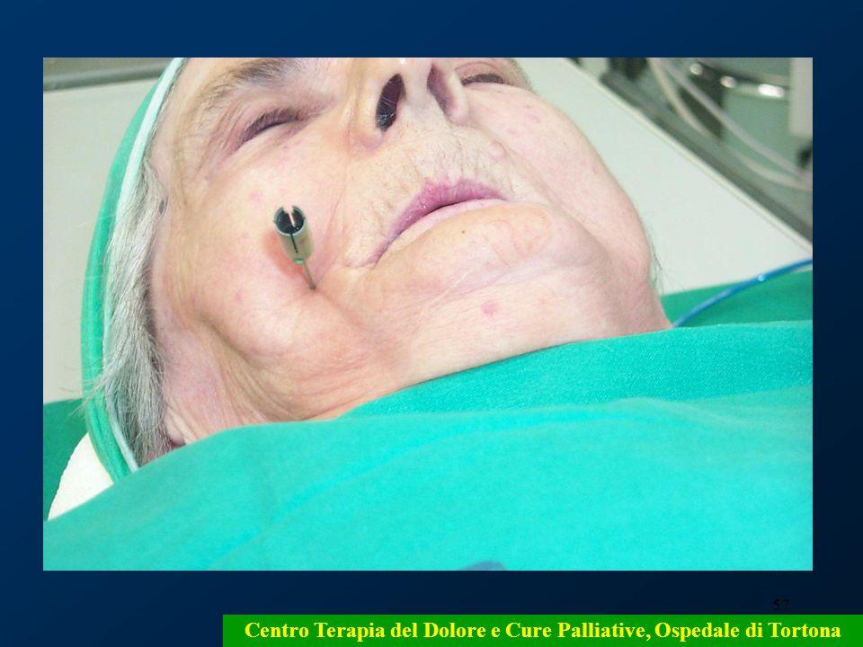 57 Centro Terapia del Dolore e Cure Palliative, Ospedale di Tortona