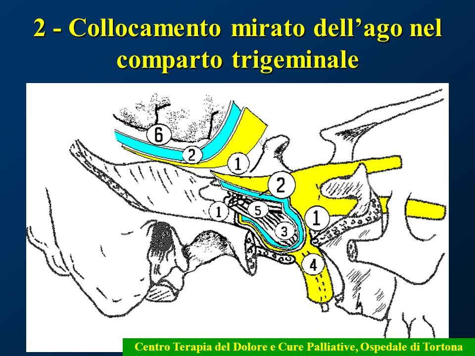 58 2 - Collocamento mirato dellago nel comparto trigeminale Centro Terapia del Dolore e Cure Palliative, Ospedale di Tortona