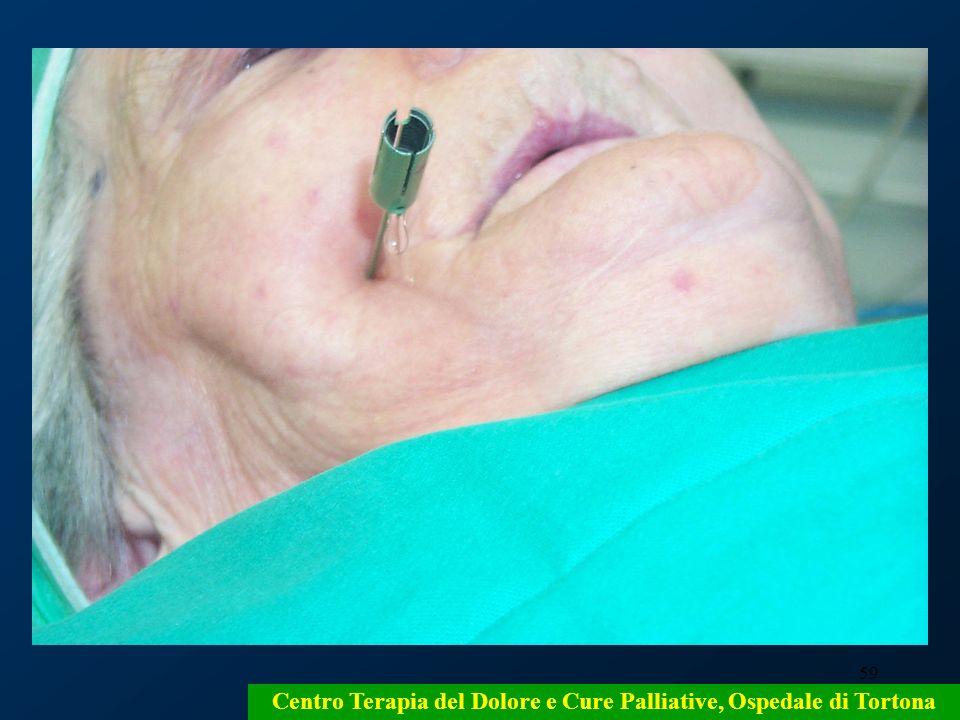 59 Centro Terapia del Dolore e Cure Palliative, Ospedale di Tortona