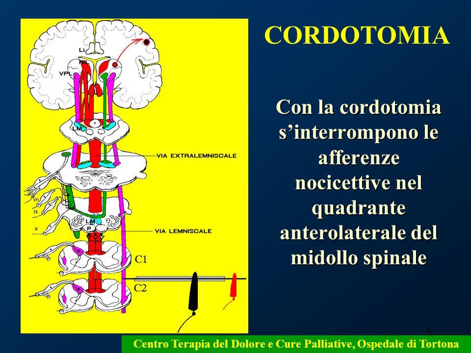 8 Con la cordotomia sinterrompono le afferenze nocicettive nel quadrante anterolaterale del midollo spinale Centro Terapia del Dolore e Cure Palliativ