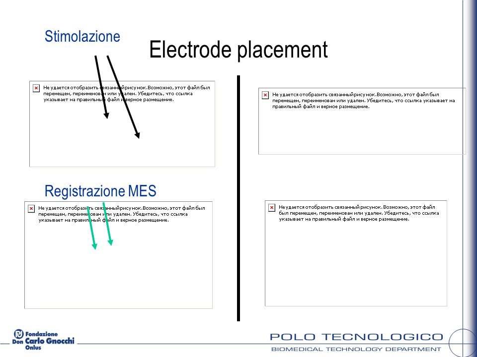 Stimolazione Registrazione MES Electrode placement