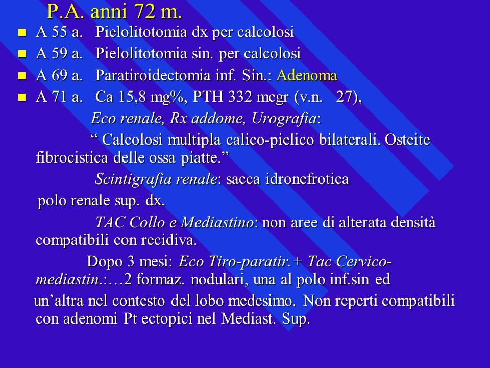 P.A. anni 72 m. A 55 a. Pielolitotomia dx per calcolosi A 55 a. Pielolitotomia dx per calcolosi A 59 a. Pielolitotomia sin. per calcolosi A 59 a. Piel