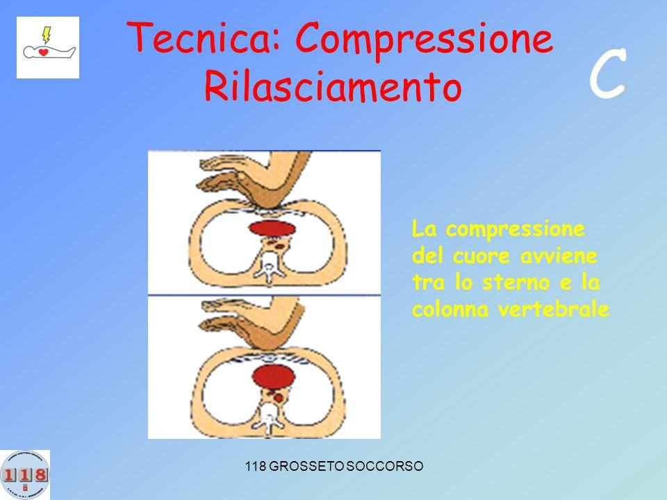 118 GROSSETO SOCCORSO Tecnica: Compressione Rilasciamento La compressione del cuore avviene tra lo sterno e la colonna vertebrale C