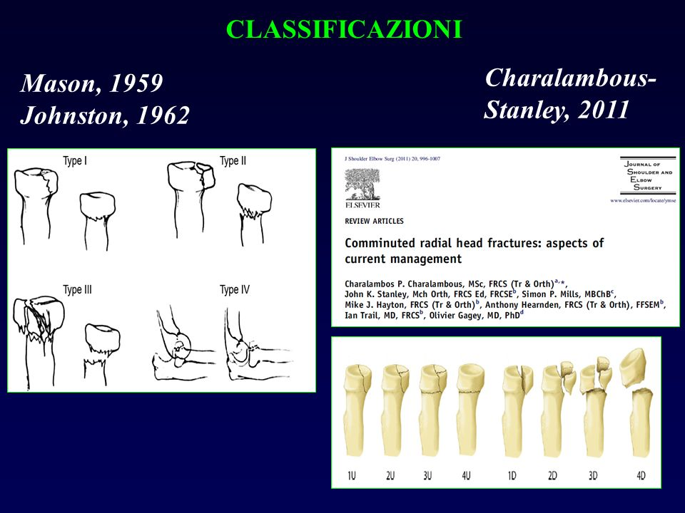 CLASSIFICAZIONI Mason, 1959 Johnston, 1962 Charalambous- Stanley, 2011