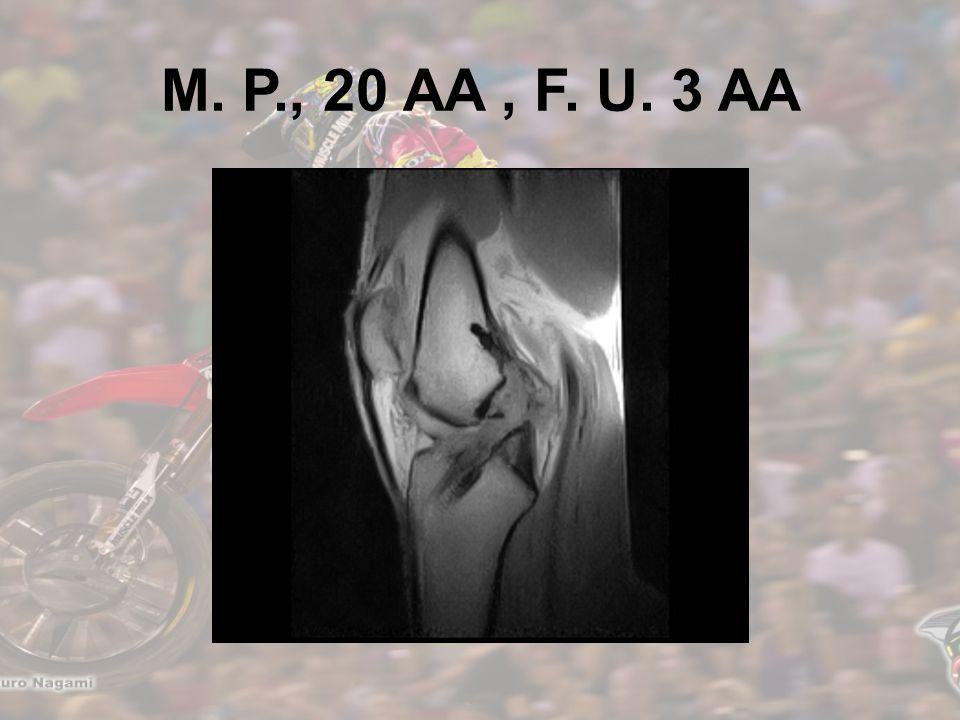 M. P., 20 AA, F. U. 3 AA