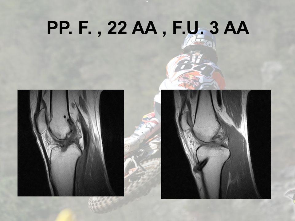 PP. F., 22 AA, F.U. 3 AA