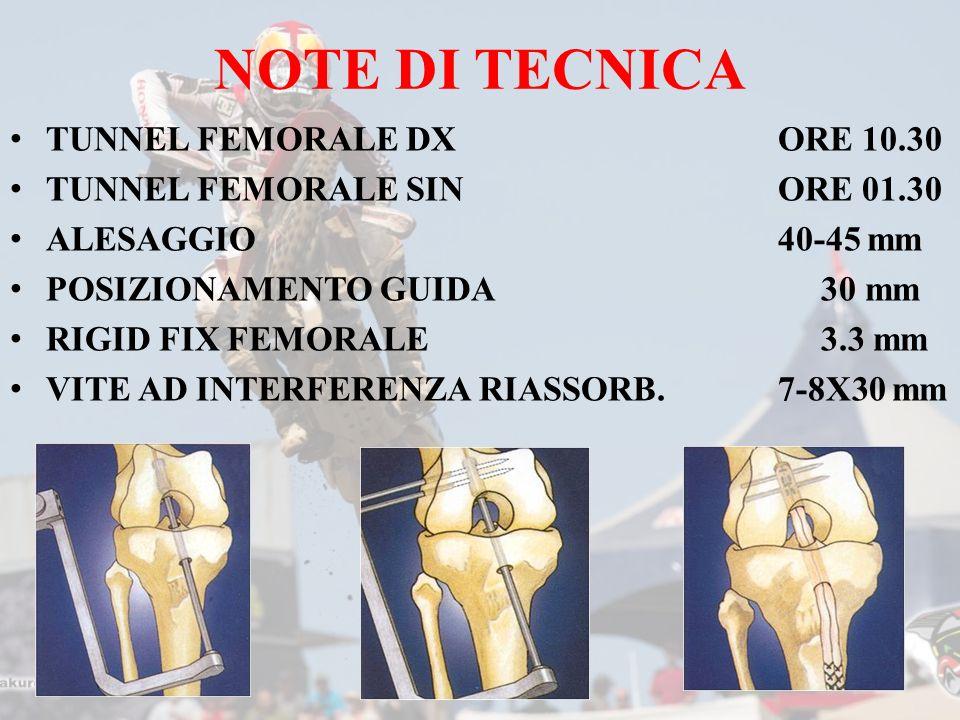 NOTE DI TECNICA TUNNEL FEMORALE DXORE 10.30 TUNNEL FEMORALE SINORE 01.30 ALESAGGIO40-45 mm POSIZIONAMENTO GUIDA 30 mm RIGID FIX FEMORALE 3.3 mm VITE AD INTERFERENZA RIASSORB.7-8X30 mm