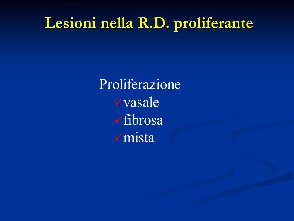 Lesioni nella R.D. proliferante Proliferazione vasale fibrosa mista