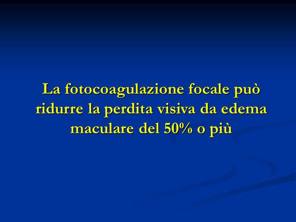 La fotocoagulazione focale può ridurre la perdita visiva da edema maculare del 50% o più