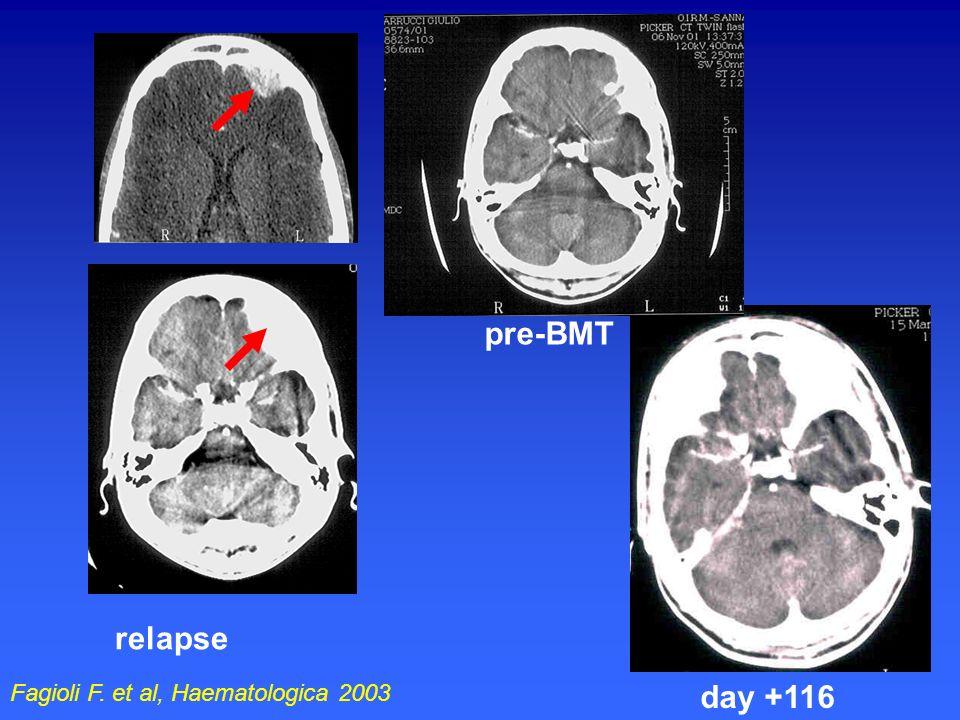 relapse pre-BMT day +116 Fagioli F. et al, Haematologica 2003