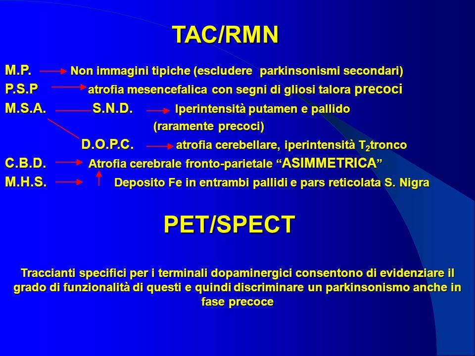 TAC/RMN M.P. Non immagini tipiche (escludere parkinsonismi secondari) P.S.P atrofia mesencefalica con segni di gliosi talora precoci M.S.A. S.N.D. Ipe