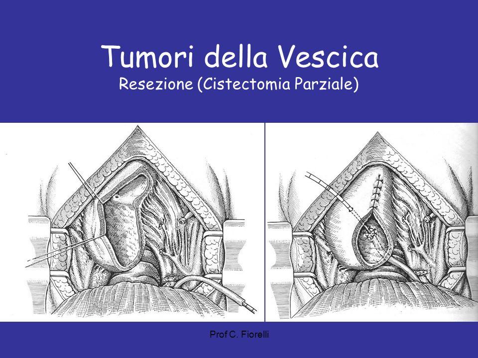 Tumori della Vescica Resezione (Cistectomia Parziale) Prof C. Fiorelli