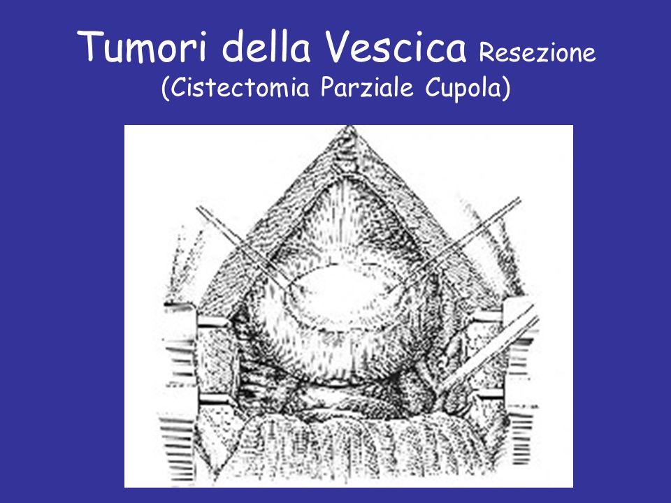 Tumori della Vescica Resezione (Cistectomia Parziale Cupola) Prof C. Fiorelli