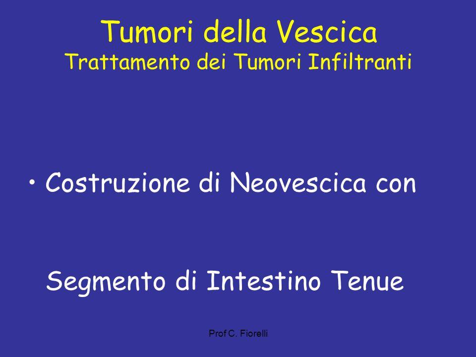 Tumori della Vescica Trattamento dei Tumori Infiltranti Costruzione di Neovescica con Segmento di Intestino Tenue