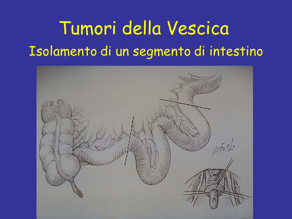 Prof C. Fiorelli Tumori della Vescica Isolamento di un segmento di intestino