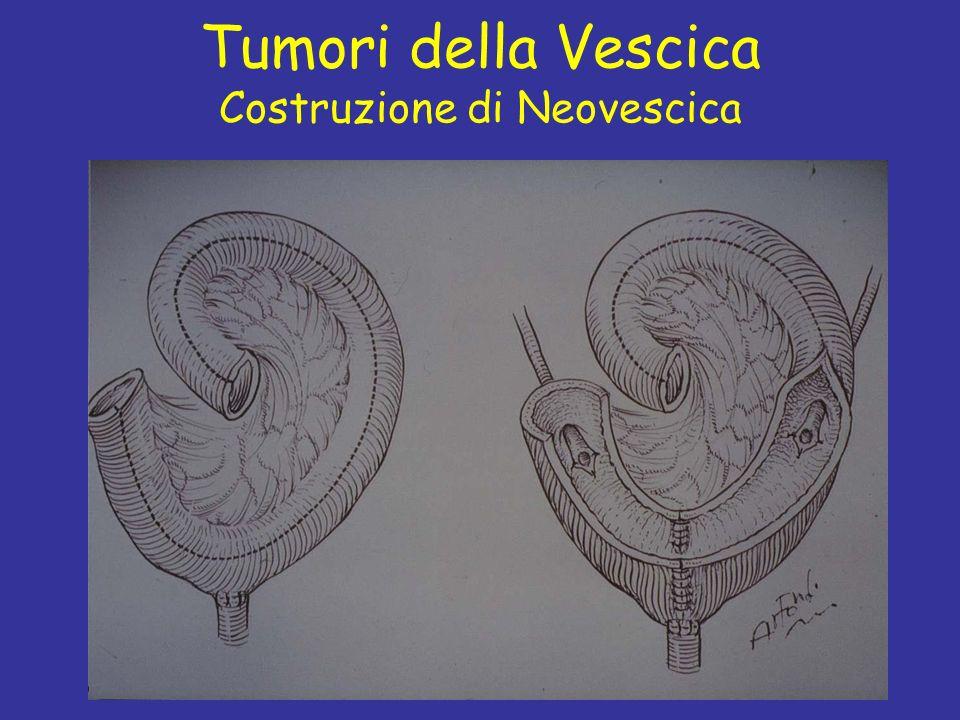 Prof C. Fiorelli Tumori della Vescica Costruzione di Neovescica