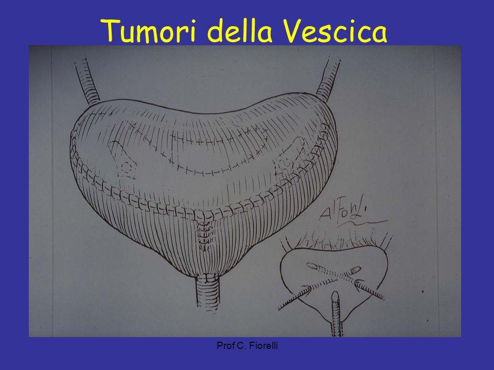 Prof C. Fiorelli Tumori della Vescica