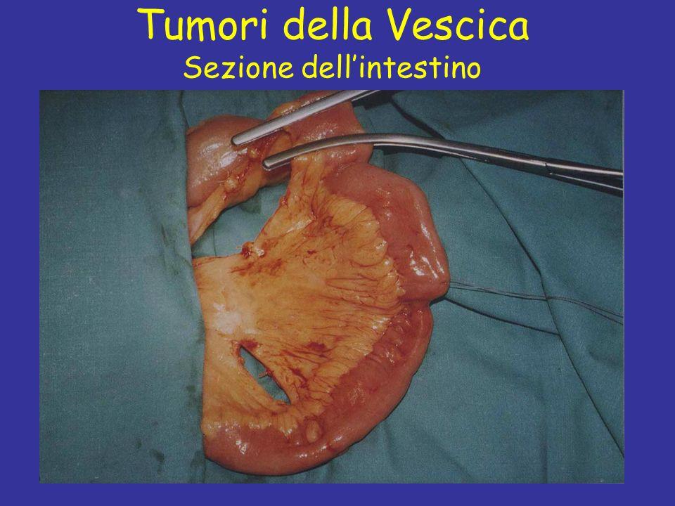 Prof C. Fiorelli Tumori della Vescica Sezione dellintestino