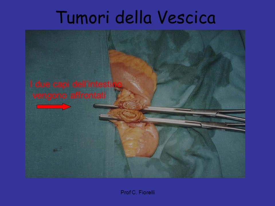 Prof C. Fiorelli Tumori della Vescica I due capi dellintestino vengono affrontati