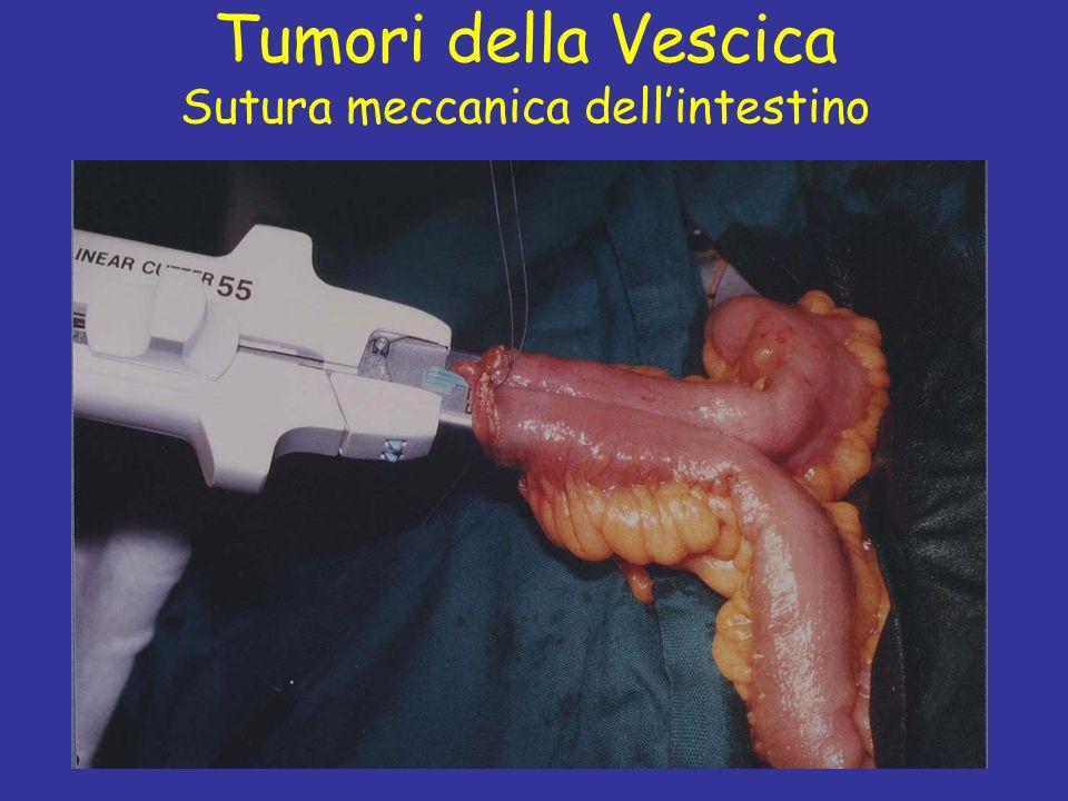 Prof C. Fiorelli Tumori della Vescica Sutura meccanica dellintestino