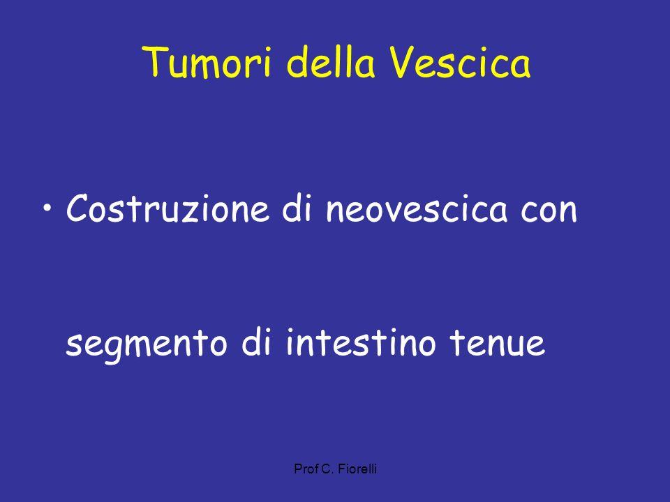 Prof C. Fiorelli Tumori della Vescica Costruzione di neovescica con segmento di intestino tenue