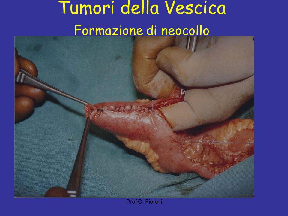 Prof C. Fiorelli Tumori della Vescica Formazione di neocollo
