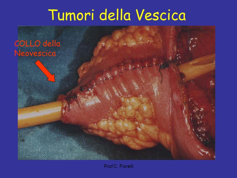 Prof C. Fiorelli Tumori della Vescica COLLO della Neovescica