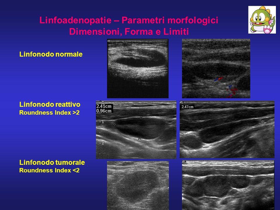 Linfoadenopatie – Parametri morfologici Dimensioni, Forma e Limiti Linfonodo normale Linfonodo reattivo Roundness Index >2 Linfonodo tumorale Roundnes