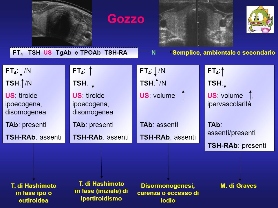 Gozzo FT 4 TSH US TgAb e TPOAb TSH-RA N FT 4 : /N TSH: /N US: tiroide ipoecogena, disomogenea TAb: presenti TSH-RAb: assenti FT 4 : TSH: US: tiroide i